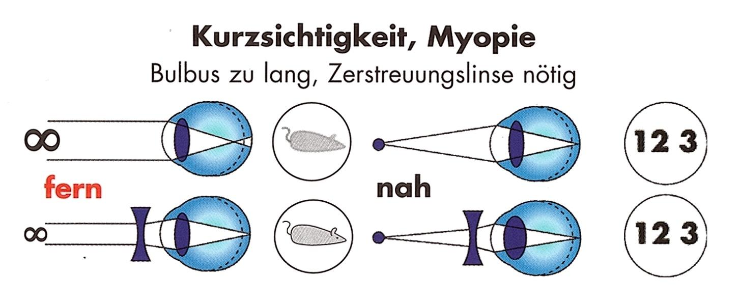 Nett Das Auge Anatomie Galerie - Anatomie Ideen - finotti.info